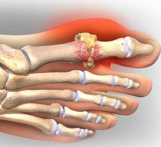 ПОДАГРА: Как быстро снять острую боль во время приступа