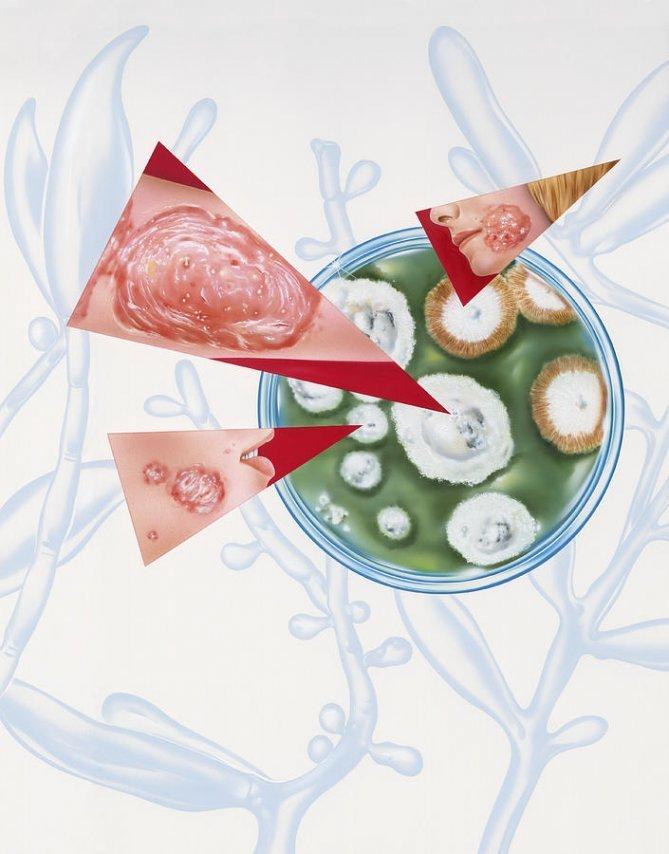 ГРИБКОВАЯ ИНФЕКЦИЯ в организме: Симптоматика и лечение