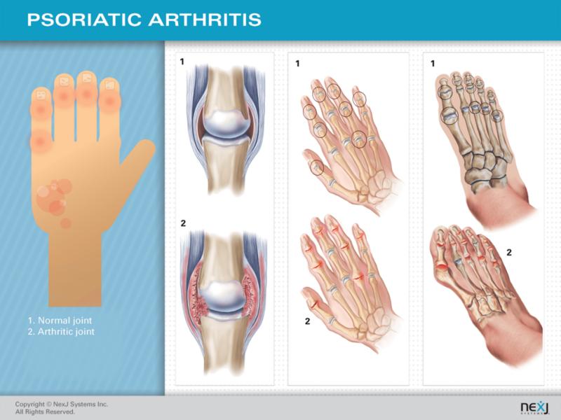 Суставной синдром при псориатическом артрите фото