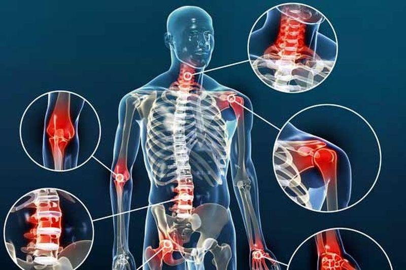 Какие витамины нужны при артрите суставов: что избавит от боли и воспаления